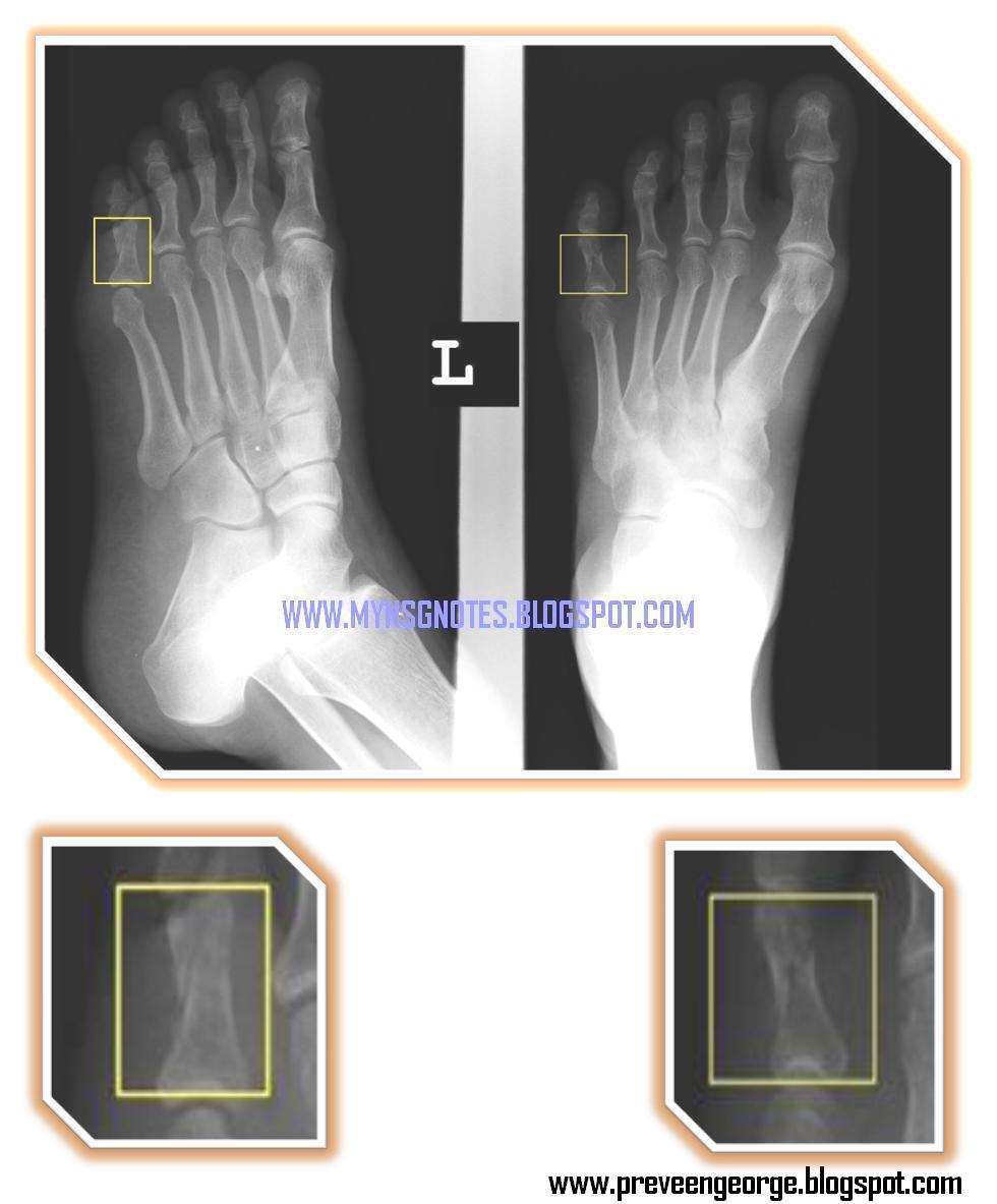 Proximal phalanx fracture foot