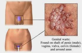 menghilangkan kutil di vagina