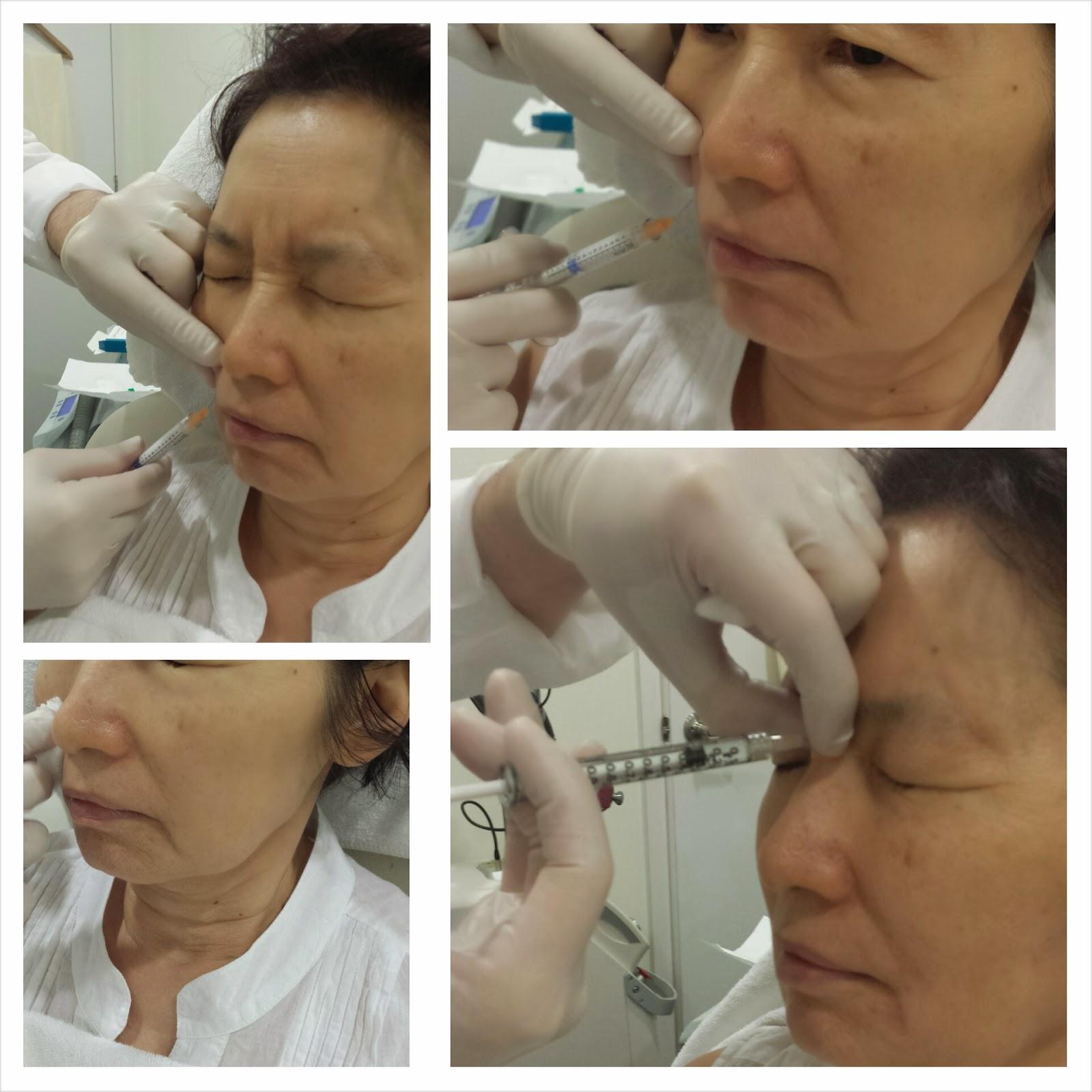 Filler_botox_wrinkles-Nasolabial folds