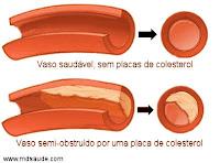 Placa de colesterol na artéria
