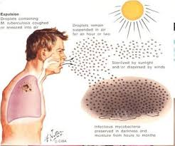http://greenworldinternasional.com/obat-tradisional-tbc-paru-paru/