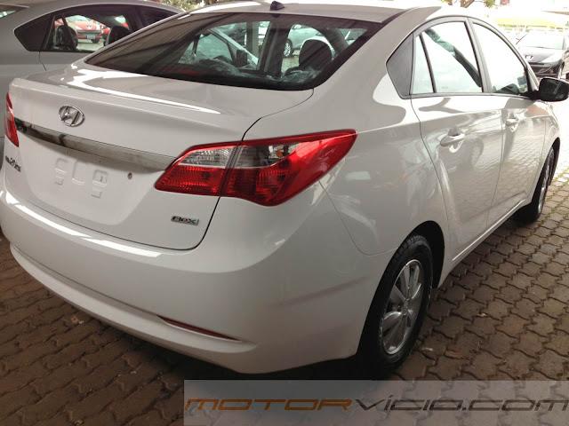 Hyundai HB20S Sedã - Tabela de Preços