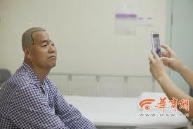 Ο άνθρωπος με το μισό κρανίο αποκαταστάθηκε με 3D προσθετική