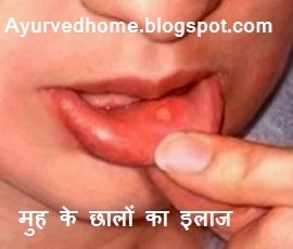 मुह के छालों का इलाज