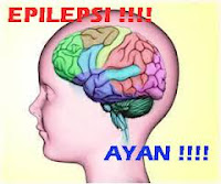 obat penyakit epilepsi