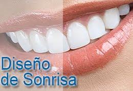 Odontología Estética - Maribel López Delgado, Odontóloga - Marbella