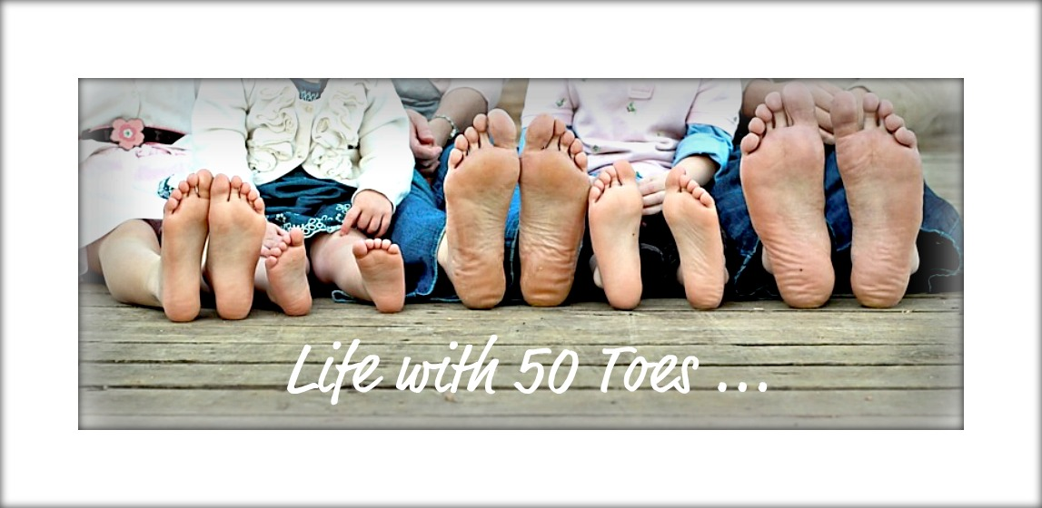 Life with 50 toes
