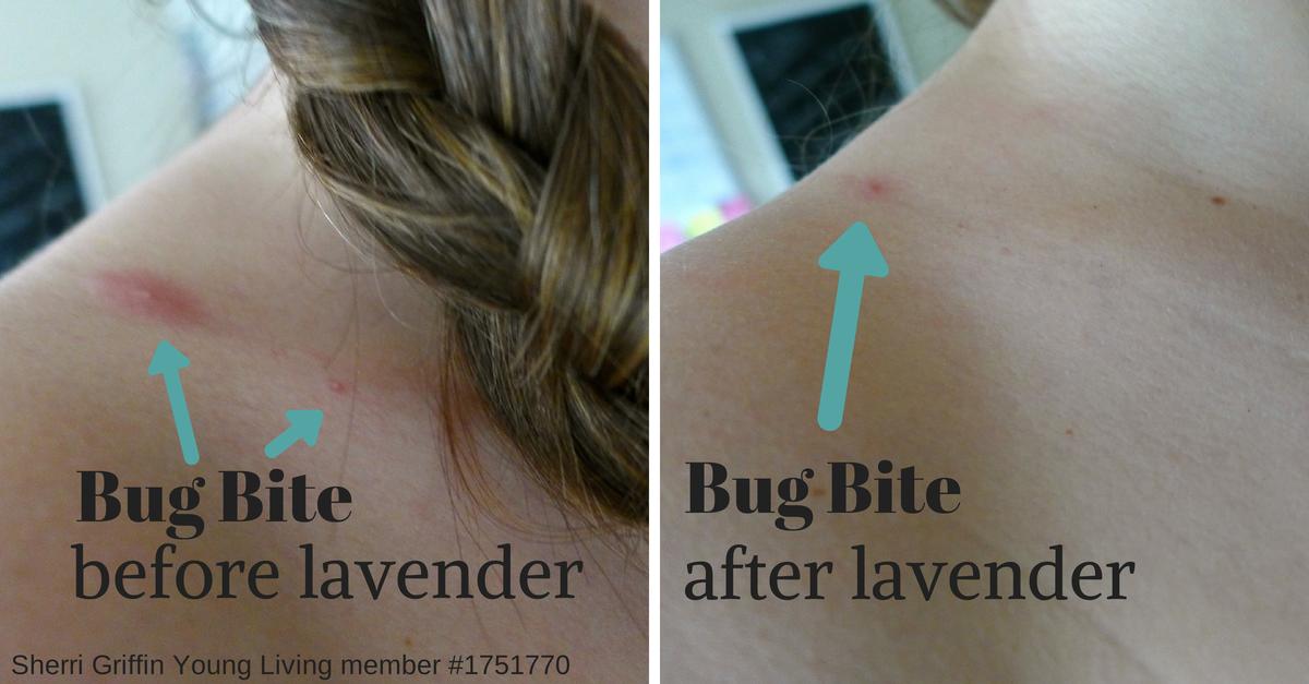 How lavender essential oil improved a bug bite