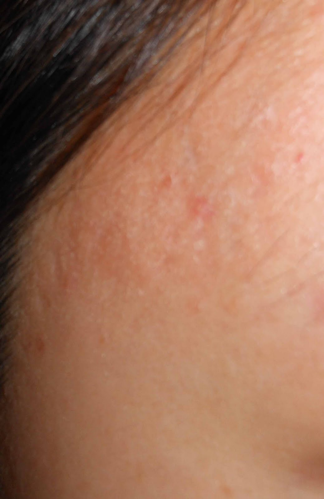 Acne Skin Care: Acne scar before and after retin-A