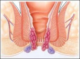 Como reducir el dolor en el pie a varikoze