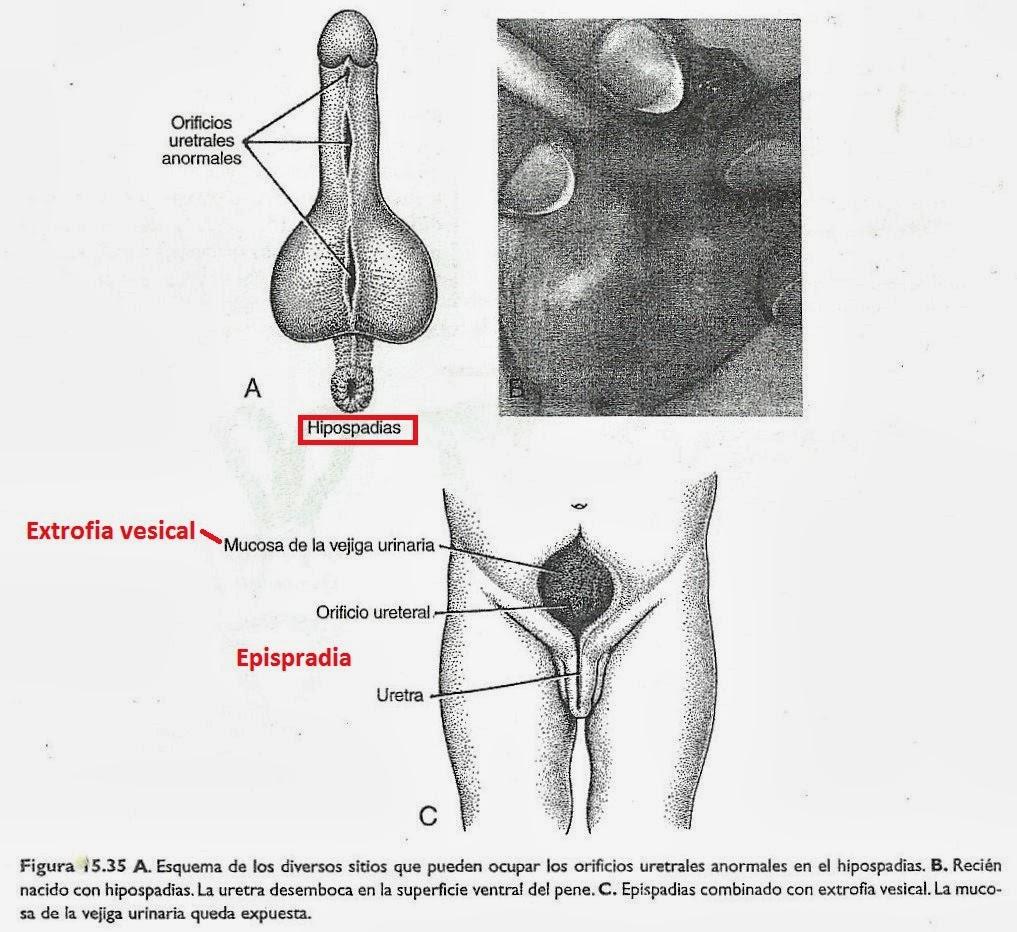 Patología : APARATO GENITAL MASCULINO: TESTÍCULO Y EPIDÍDIMO