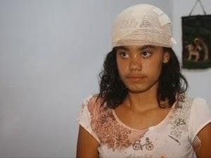 Garota ficou ferida depois que parte de telhado caiu (Foto: Reprodução/TV Bahia)