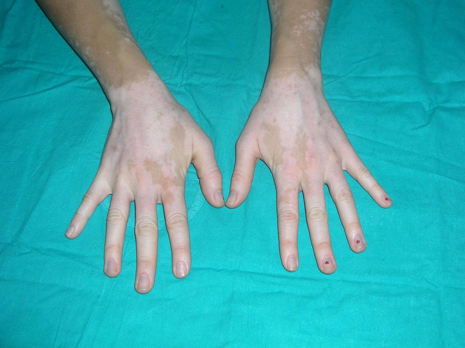 La localización de la pigmentación sobre la persona
