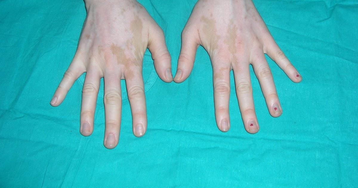 Las manchas de pigmento en el cuerpo el nombre