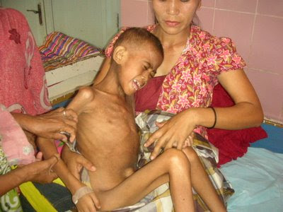 Penderita Gizi Buruk di Tarakan Menurun - Borneo