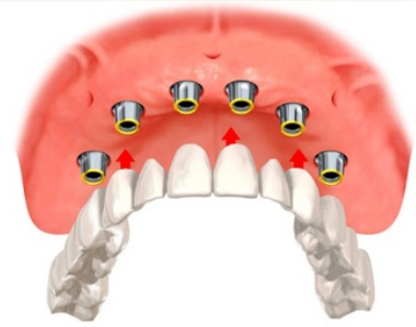 FIXED CERAMIC TEETH OVER DENTAL IMPLANTS