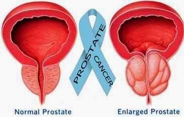 Solusi Pengobatan Penyakit Kanker Prostat Secara Alami