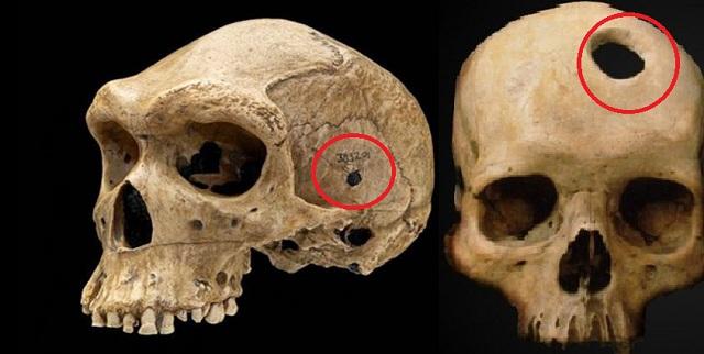 Το αίνιγμα των Προιστορικών Κρανίων με τις τρύπες από σφαίρες