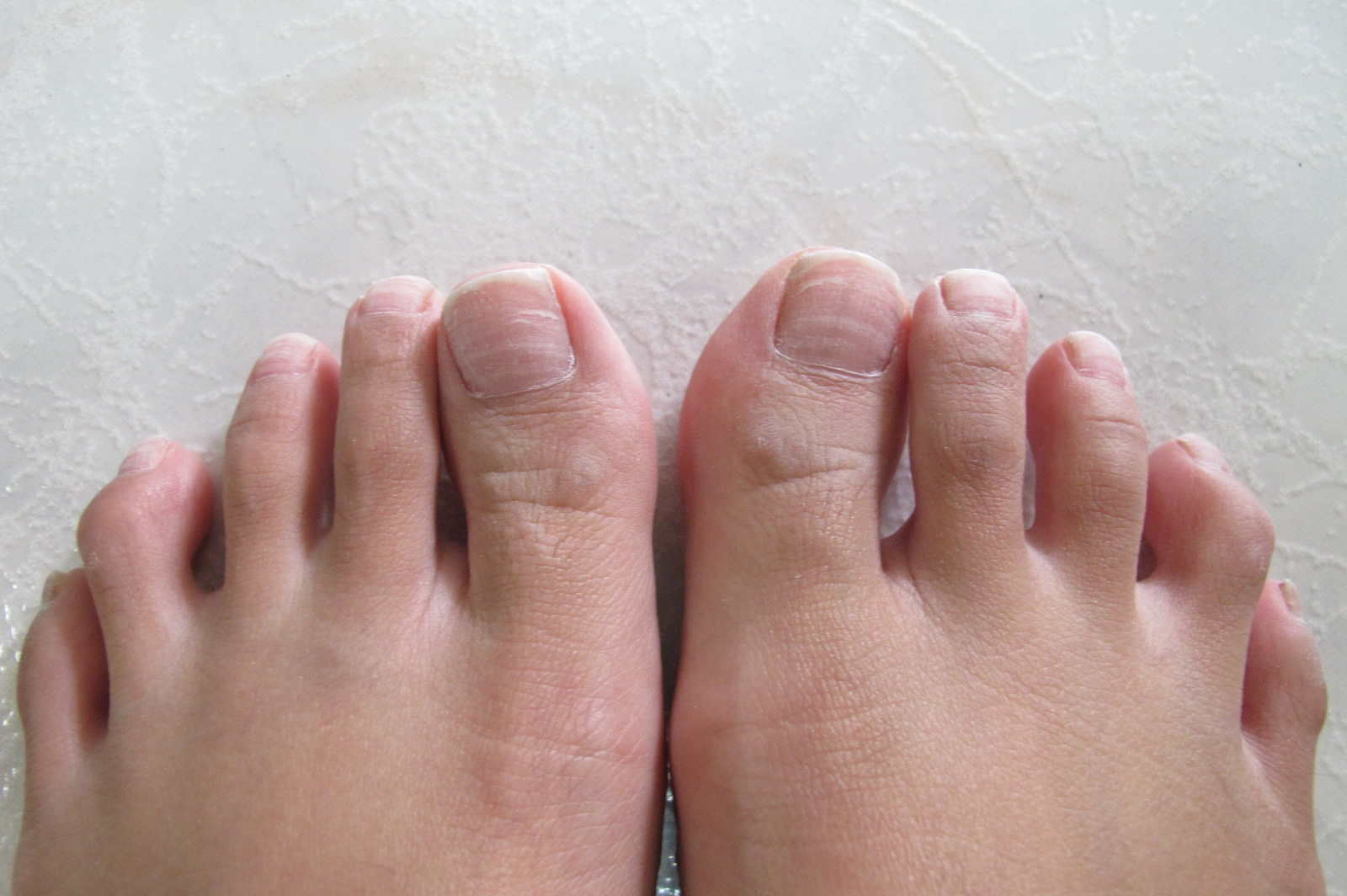 How to cure brittle nails   www.xiangtingk.com