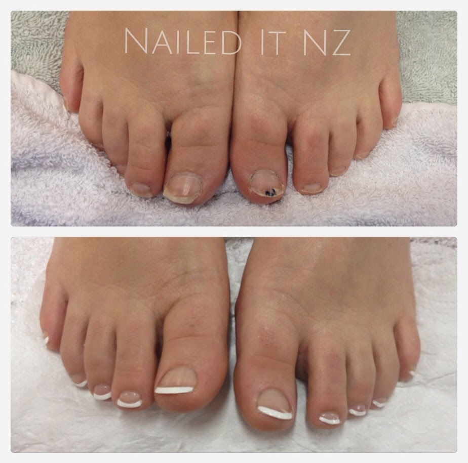 French polish for Fish pedicure before and after