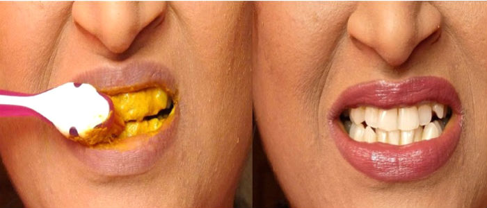 Ampuh Putihkan Gigi Dengan Kunyit Dalam 5 Menit Cantik Dan Sehat