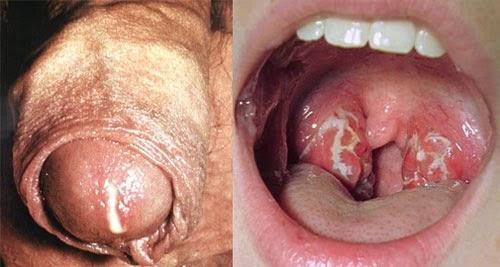 Injeksi Sipilis