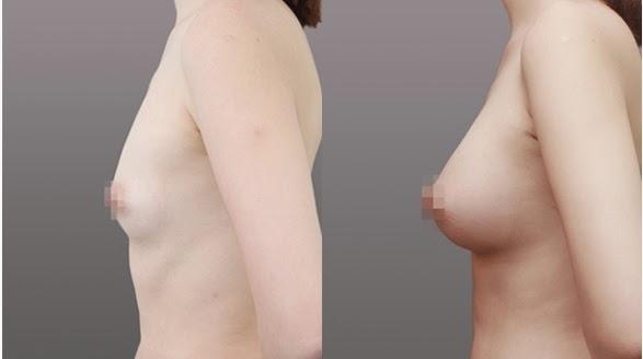 Sebelum dan sesudah operasi plastik payudara di Wonjin tampak samping