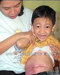 Bahaya!! Makan Mie Menyebabkan Kanker dan Busuknya Usus