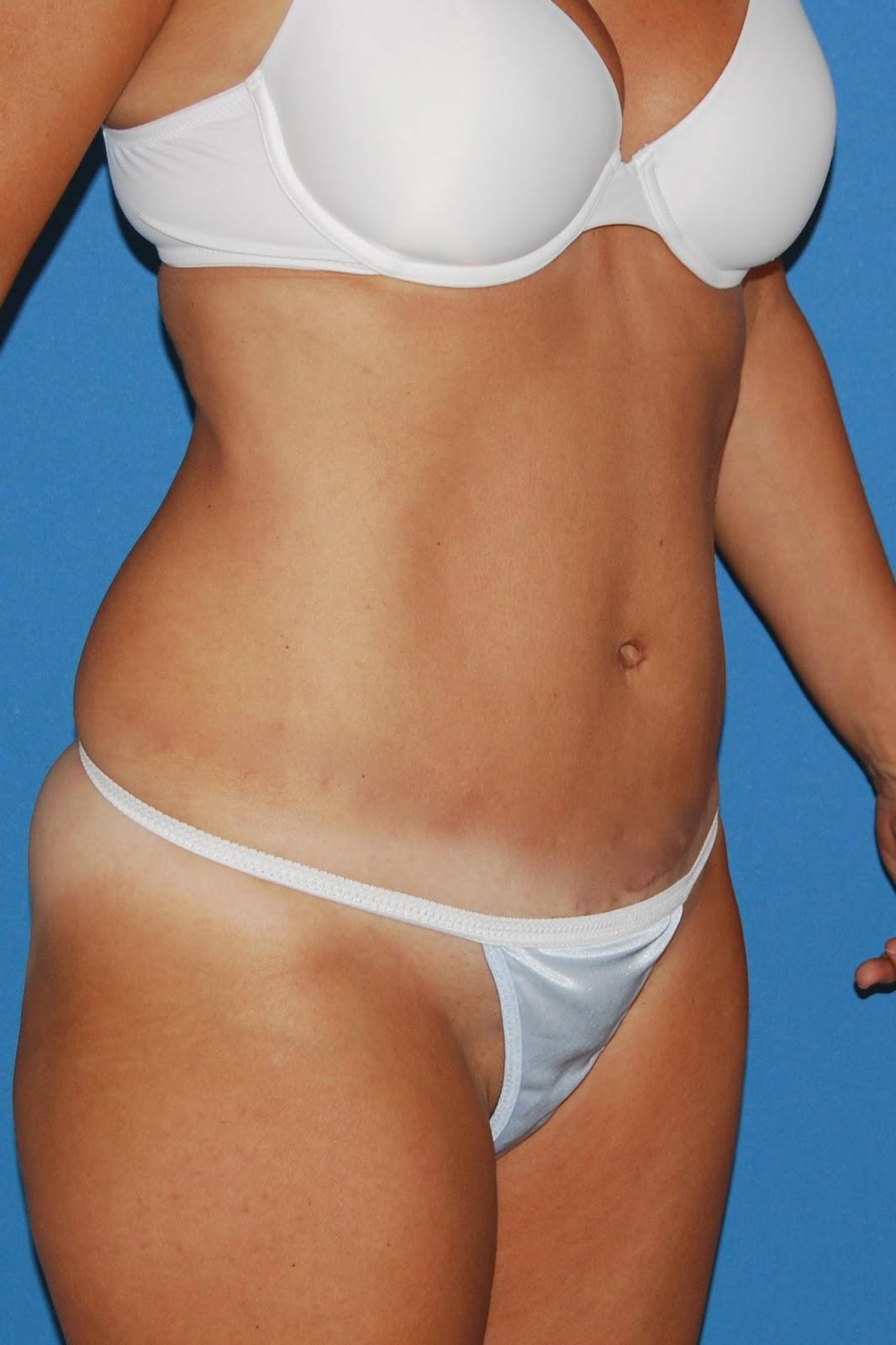 Weight loss surgery brunswick ga image 6