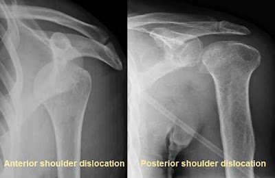 Anterior and posterior shoulder dislocation.