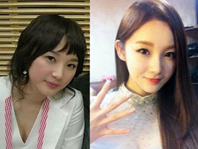 Min Kyung Davichi Before After