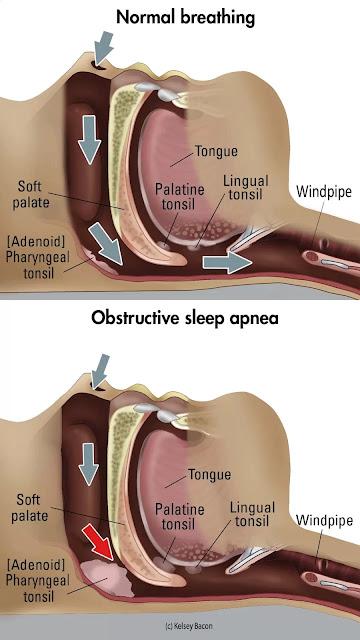 Gambar Gangguan Tidur Sleep Apnea