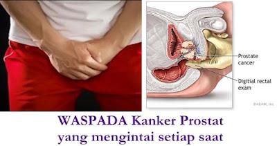 Obat Tradisional Kanker Prostat