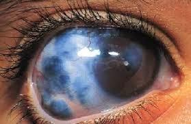 Cara Pengobatan Penyakit Glaukoma