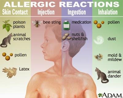 Cara Cepat Mengobati Penyakit Alergi