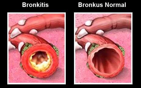 cara alami mengobati bronkitis