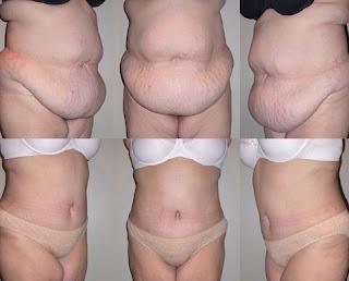 Antes e depois de abdominoplastia imagens