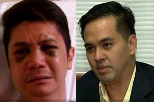 How Cedric Lee accuses Vhong of twisting facts about what happened on Cornejo's Condo