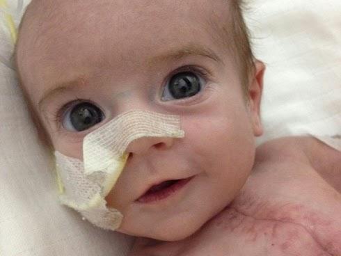 Selepas jalani lebih 9 pembedahan bayi yang lahir dengan separuh jantung kini sihat