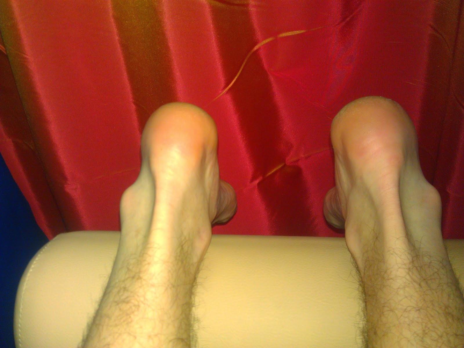 Косточки на ногах шишки  фотографии до и после удаления