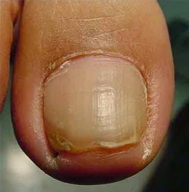 Грибок на пальцах ног во время беременности