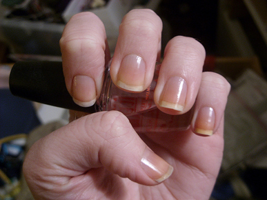 Another Common Cause Of Yellow Nails Is Prolonged Using Nail Polish Dark Colours Lied Directly Onto The Are Most Likely To Staining
