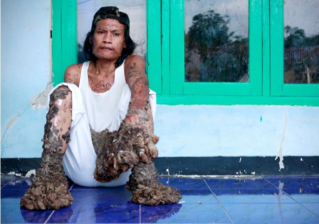 Elephant Man Disease Treatment for the disease Elephant Man Disease Symptoms