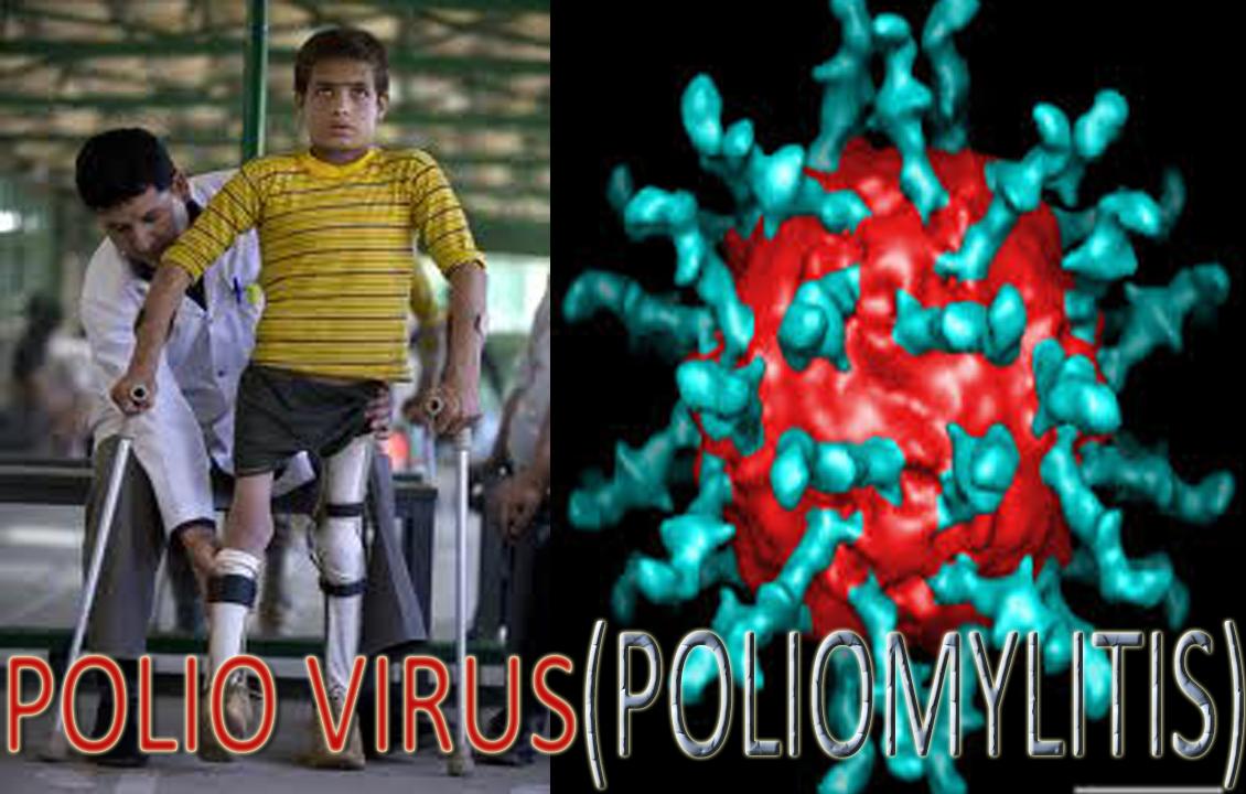 polio disease driverlayer search engine
