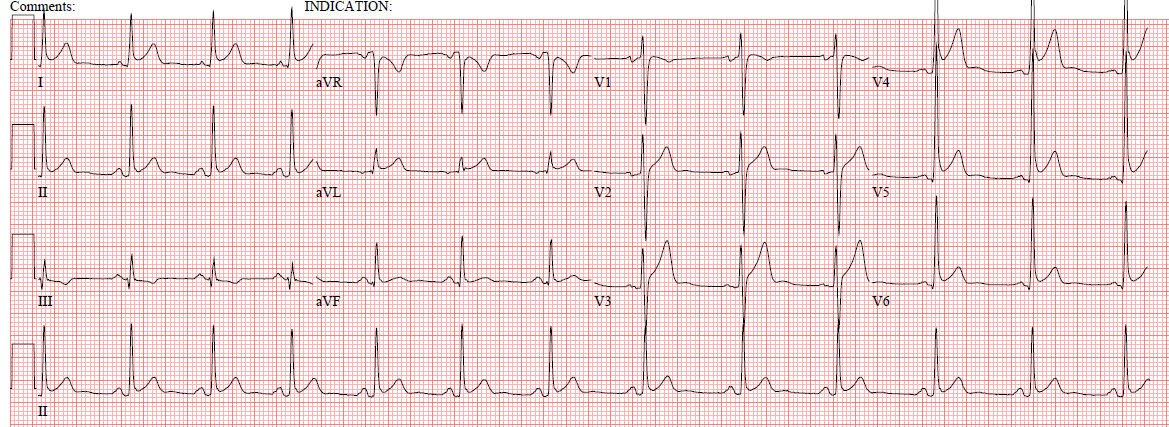 Dr. Smith's ECG Blog: 31 Year Old Male with RUQ Pain and a History ...