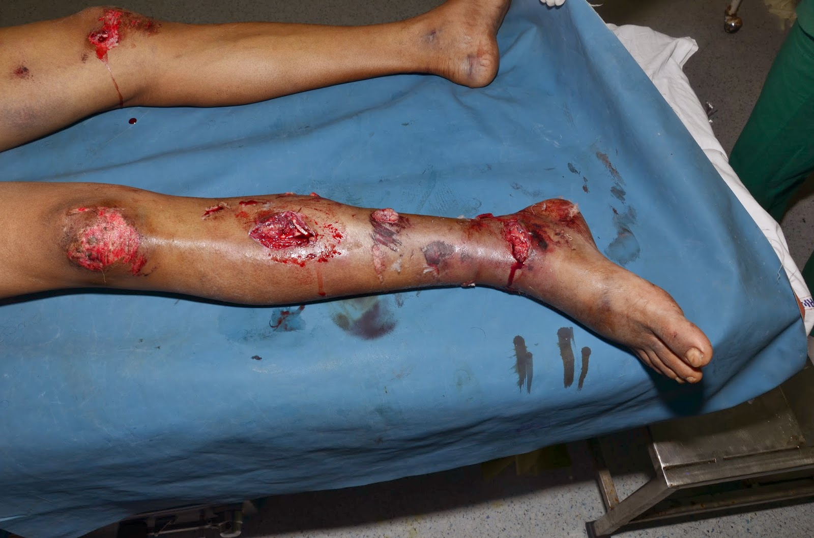 FRACTURE (LEG) TIBIA WITH DEGLOVING OF ENTIRE MEDIAL SKIN OVER TIBIA -1.bp.blogspot.com