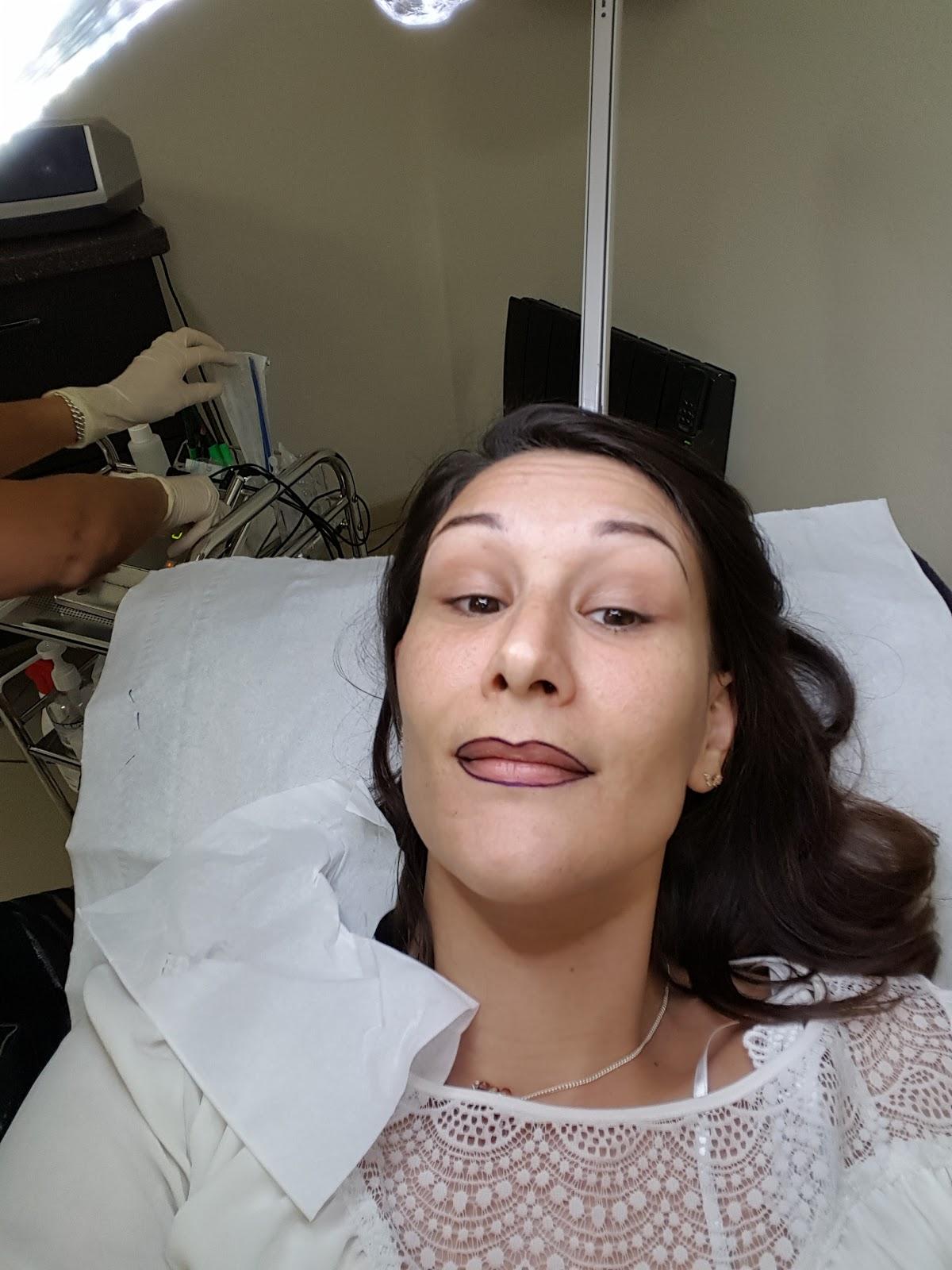 pigmentation des lèvres