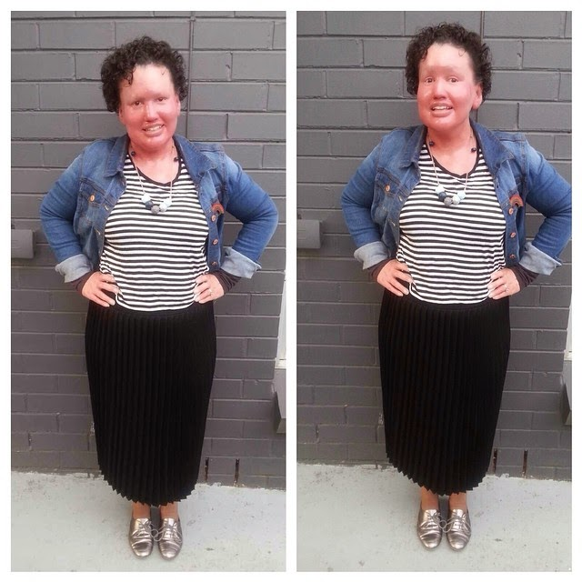Carly Findlay stripes and denim