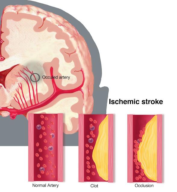 Yuk Kita Ketahui Dulu Diagnosis Stroke Itu Seperti Apa
