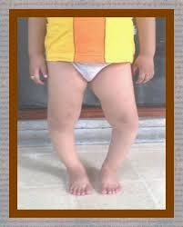 macam kaki bengkok pada anak-anak bayi, penyebab kaki tungkai bayi bengkok